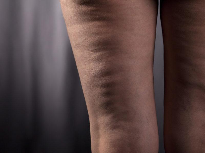 Prendre votre combat contre les cellulites en main